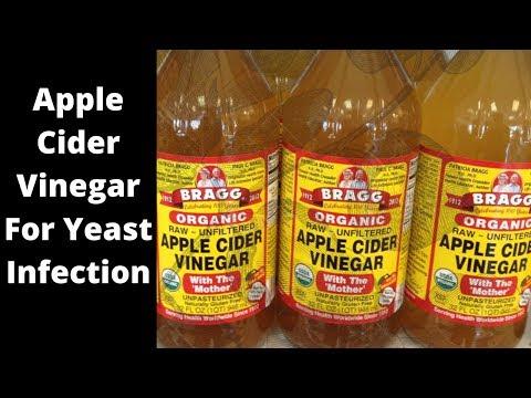apple-cider-vinegar-yeast-infection