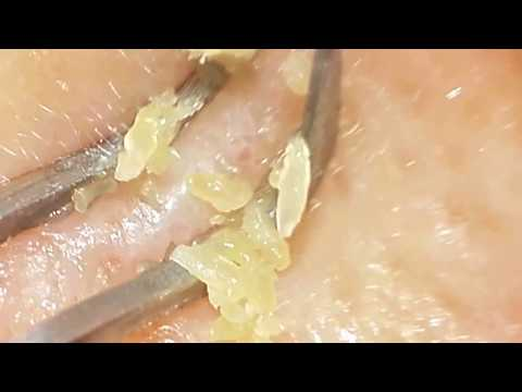 huge-yellow-clogged-pores-removal-with-clip-curved-tweezers.-blackheads-removal.