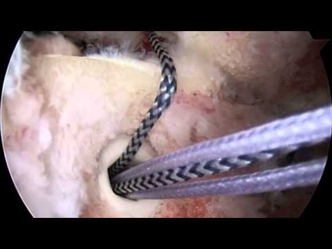 Arthroscopic Greater Tuberosity Fracture Repair