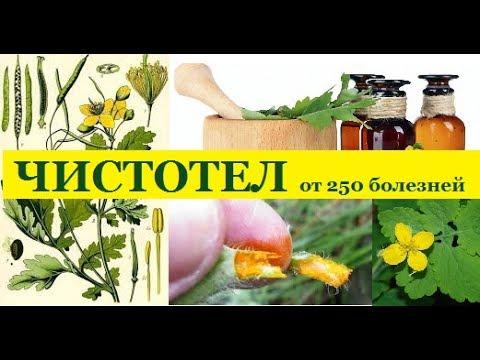 Антигистаминные препараты при кожной аллергии: способы