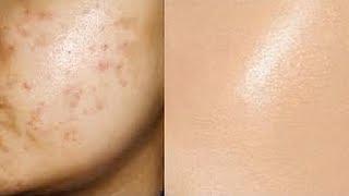 EXACTEMENT quoi faire avec des cicatrices d'acné! (De l'expérience)