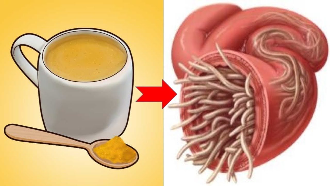 Natural Ways To Get Rid Of Intestinal Worms In No Time - YouTube