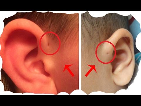 Дырка в верхней части уха с рождения