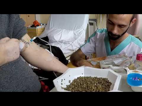 Чем кормят во французской больнице. №5 Обед.