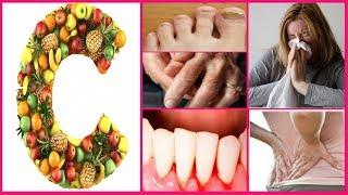 Vitamin C के कमी के लक्षण, उपचार और आहार - Vitamin C Benefits, Deficiency - Health Tips
