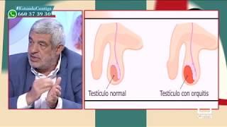 Artéria testicular de sintomas lesão da