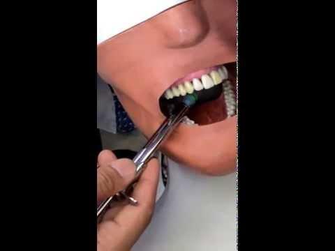 Kỹ thuật gây tê