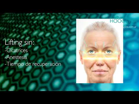 Lifting Facial con Ultrasonido Microfocalizado HIFU (18182)