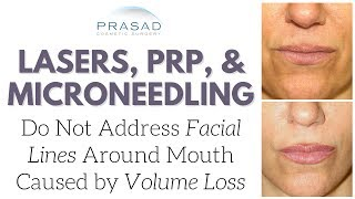 Why PRP, Microneedling, and Lasers Improve Skin Quality, but Do Not Address Volume Loss or Lift