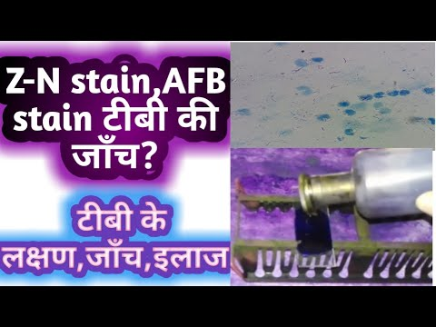 Z N Stain   AFB Stain   Diagnosis Of TB
