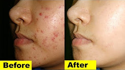 hqdefault - Remedies For Acne Prone Skin