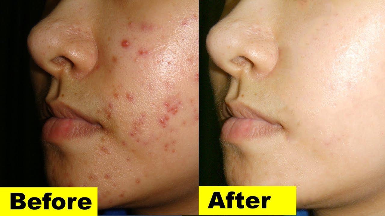 Los mejores remedios caseros para la piel propensa al acné El mejor tratamiento del acné en-8368