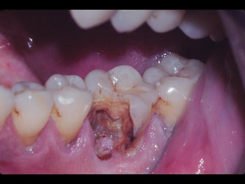 Caries dental. T.10