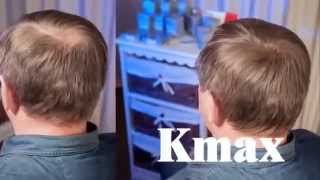 Кератиновый загуститель волос Kmax Италия