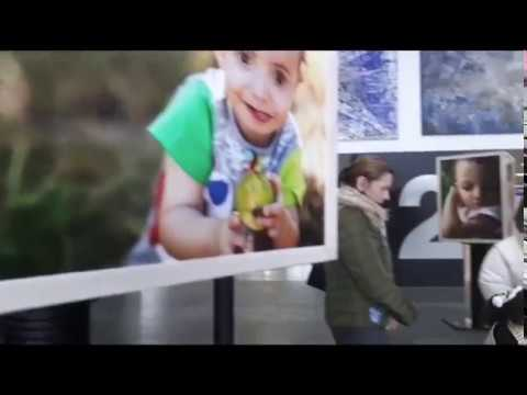 Una exposición muestra el síndrome de Wolf-Hirschhorn en el Hula