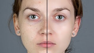 Photoshop: Smooth Skin and Remove Blemishes & Scars