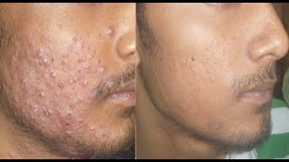 He Used This Simple Food On His Face Everyday For 7 Days.