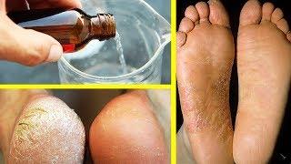 Яндекс как вылечить грибок на ногах