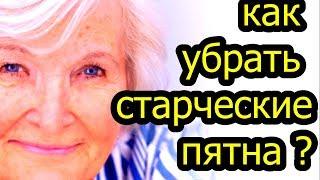Возрастная пигментация: как убрать старческие пятна на коже? ПРОСТОЙ ЭФФЕКТИВНЫЙ СПОСОБ  # топ5хайп