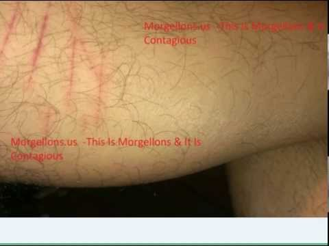 What Is Morgellons Disease?  Is Not A Disease,  It Is A Infestation Of The Human Body