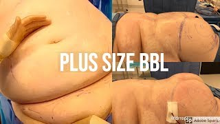 Dr Repta Performs a Plus Size Brazilian Butt Lift: Plus Size BBL + Neck Liposcution