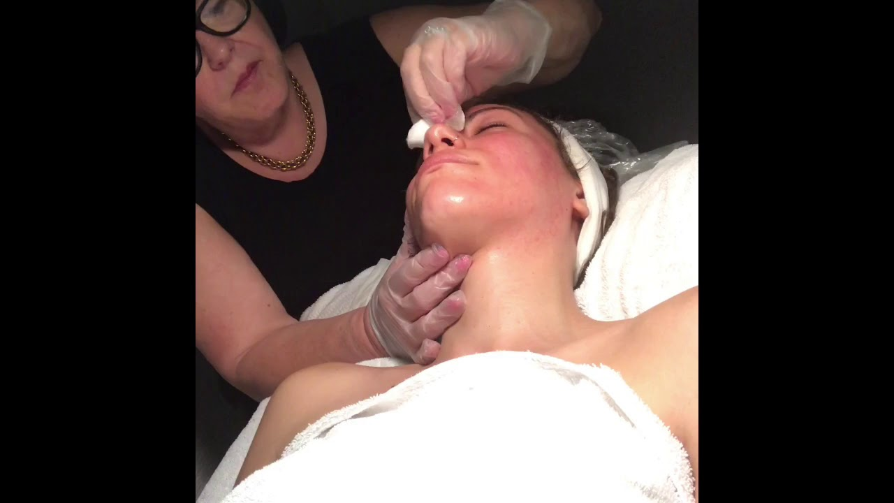 LIVE Microdermabrasion Treatment - Skin Care Makeup Center - Stamford, CT