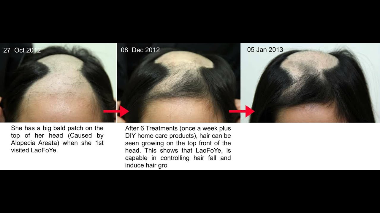 hvad er alopecia