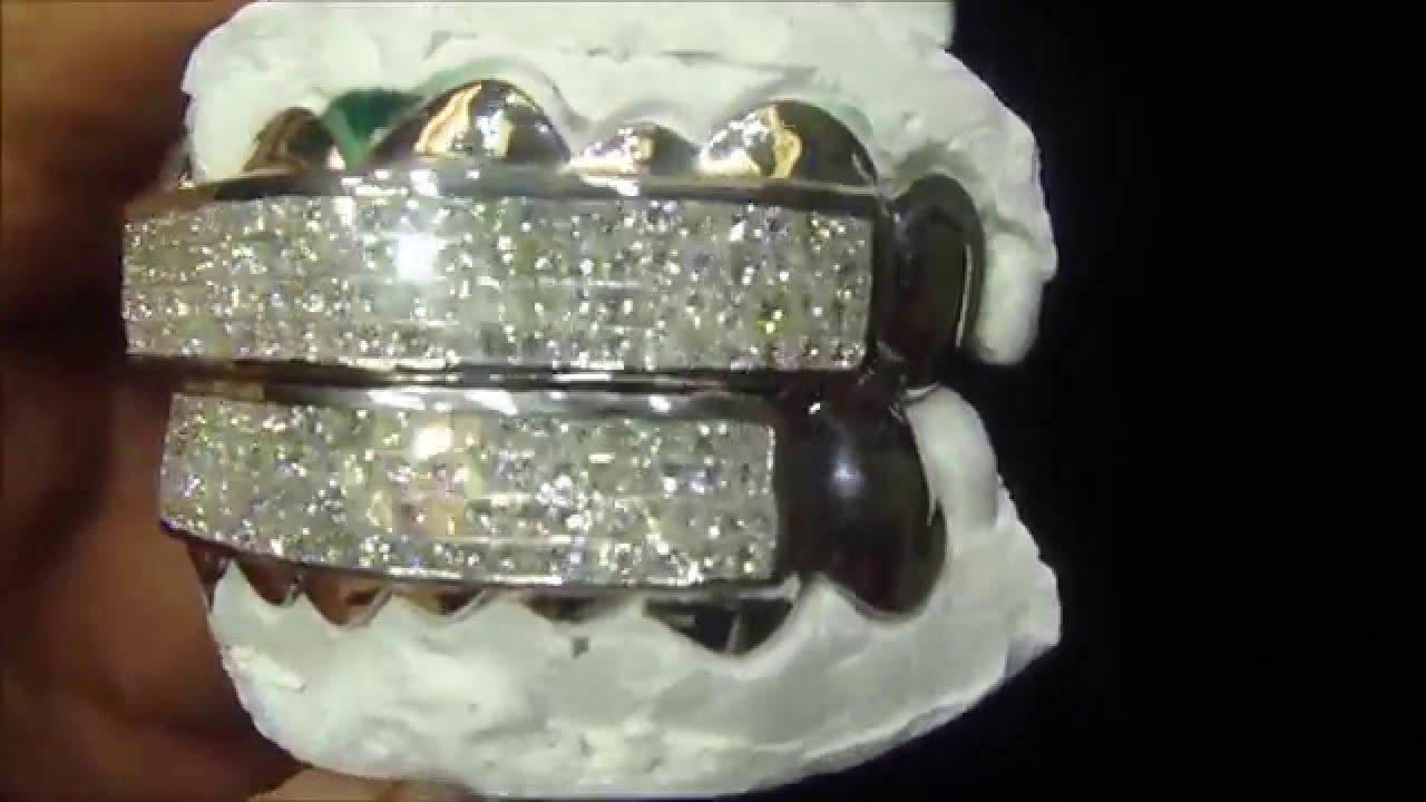 Custom Diamond Princess Cut Grillz 14k White Gold Atlanta