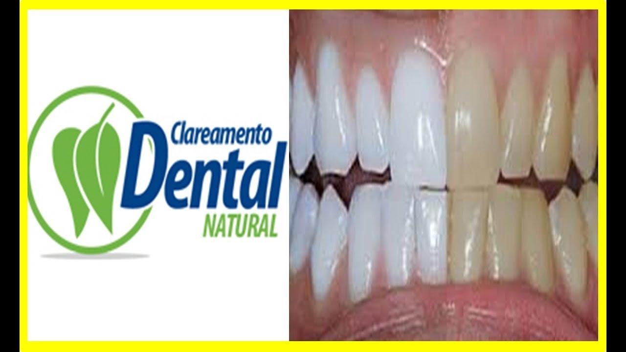 Clareamento Dental Natural Curso Completo Funciona Ebook Pdf Youtube