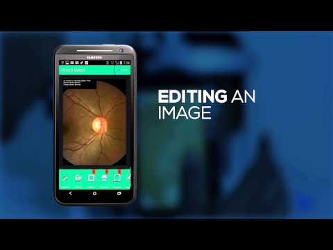 Remidio Fundus on Phone Smartphone App