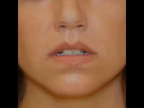 Lip Lift and Corner of Lip Lift, San Diego Plastic Surgery, Before and After