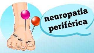 Grave de fibra pequena é neuropatia