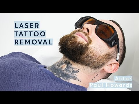 Laser Tattoo Removal Journey - Why am I getting it removed?