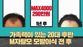모발이식 M자탈모 모발이식비용 290만원 MAX4000…