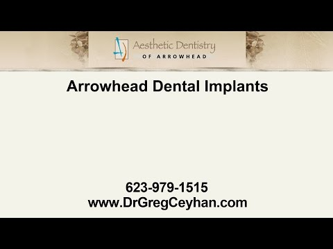 Arrowhead Dental Implants | Aesthetic Dentistry of Arrowhead