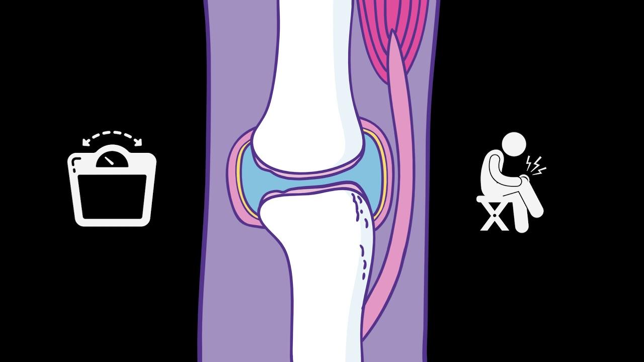 A vállízület artrózisa 4 fok, Hogyan kezelhető a rheumatoid arthritis modern eszközökkel