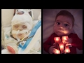Milo's Story Of Hope With Hlhs Part 2