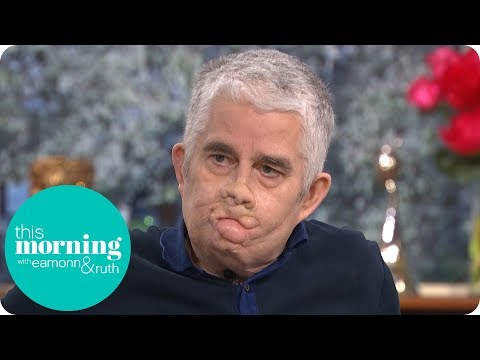 Man Who Lost His Arms and Legs to Sepsis Calls for Better Training | This Morning