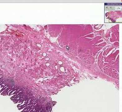 Histopathology Esophagus  --Barrett esophagus