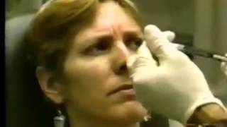 Dr. Loeb talks about Botox with Phillis George