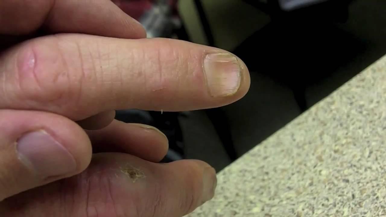 spooning Thumb nails
