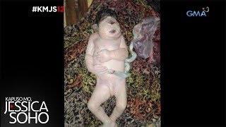 Kapuso Mo, Jessica Soho: Ang Cyclops Baby ng Sultan Kudarat