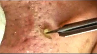 Satisfying Video Face Skin Care Beauty and Relaxing Sleep Musi…