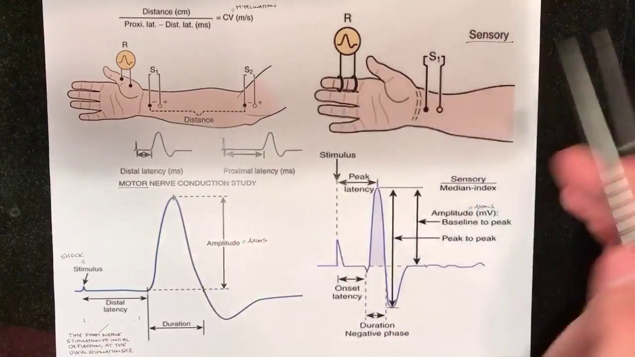 Nerve Conduction Studies | Patient