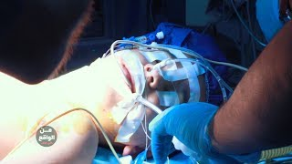 حلقة كاملة/توقف قلب طفل اكثر من 6 ساعات شاهد صدمة الاطباء والحمد الله تم انقاذه #علي_عذاب_من_الواقع