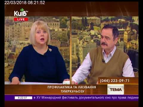 Телеканал Київ: 22.03.18  Громадська приймальня 08.15