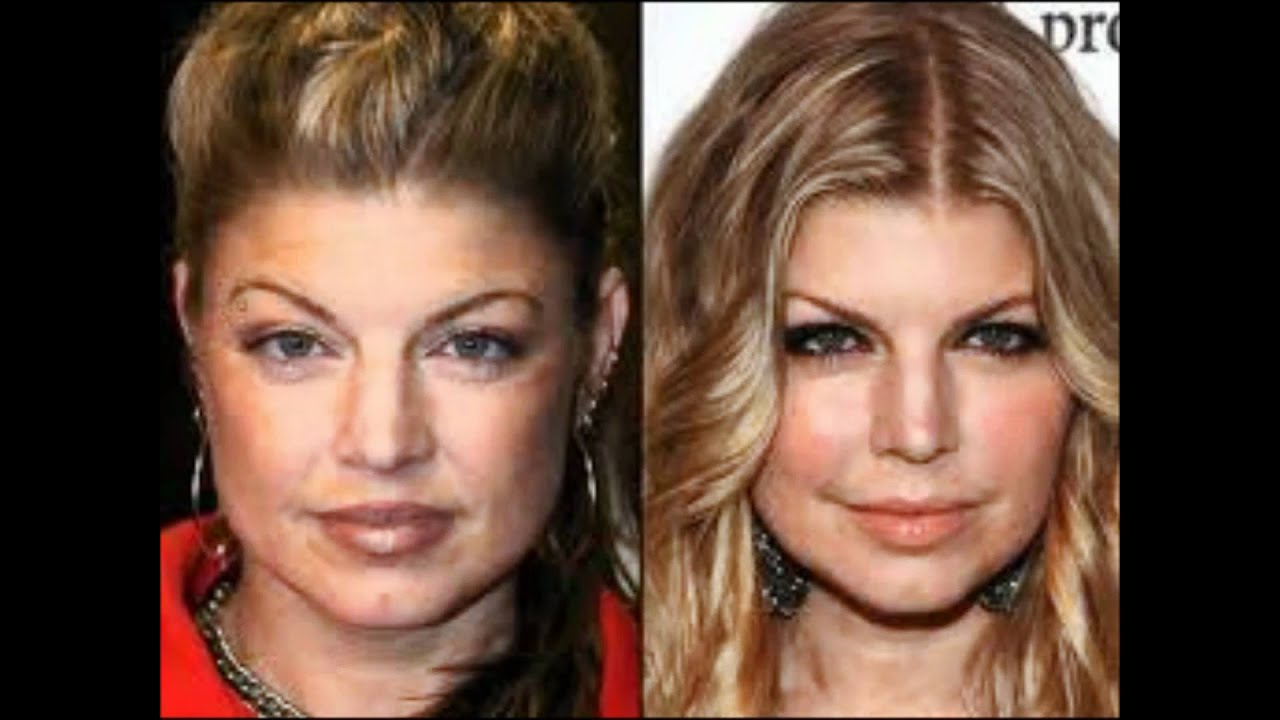 new celebrity plastic surgery before and after pictures - youtube
