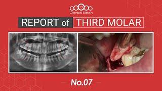 [ENG] Extraction of mesioangular Rt. \u0026 Lt Mn third molar [#Dentalbean]