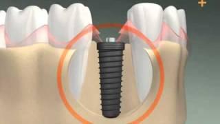 видео имплантация зубов