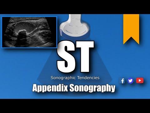 Appendix Ultrasound